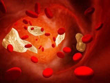 Медики рассказали о 7 правилах, легко снижающих холестерин