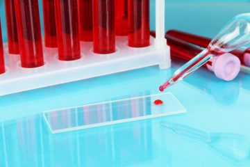Обнаружен биомаркер крови, предсказывающий рак желудка