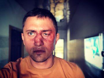 Павел Прилучный восстанавливается в больнице после операции