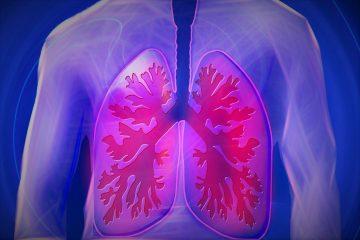 Боли в плече и руке могут являться симптомами рака легких