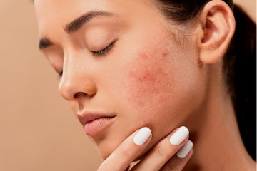 Дерматолог Арканников сообщил о последствиях COVID-19 коронавируса для кожи человека